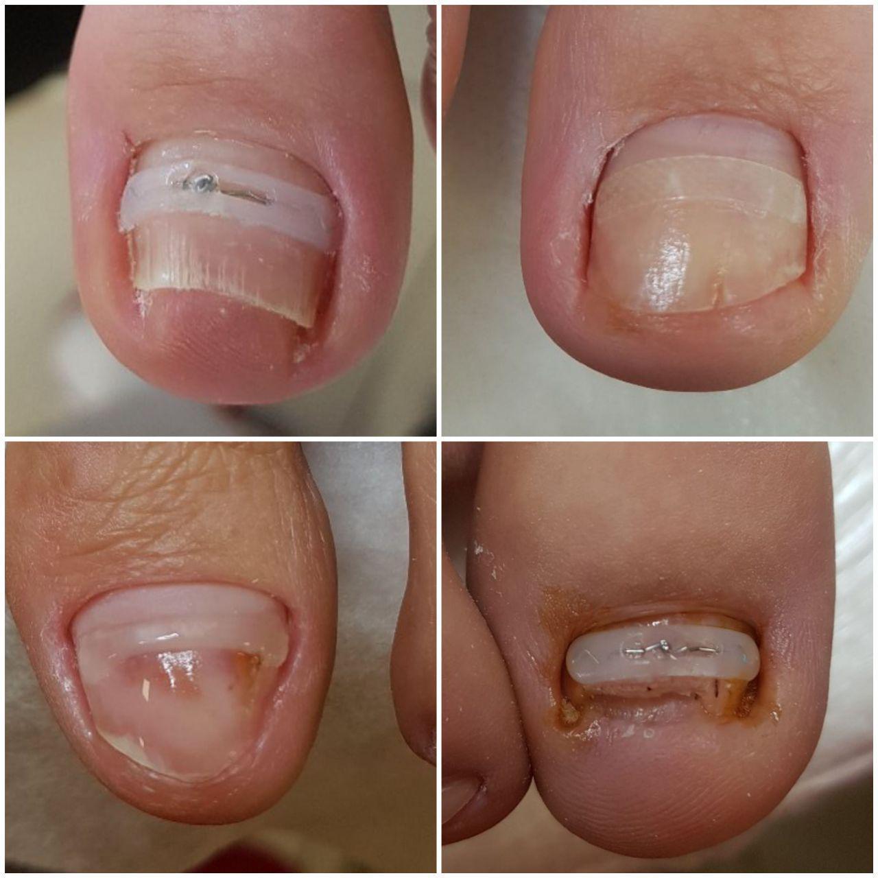 Услуга Ортонексия (Проблема вросшего ногтя), фото до/после