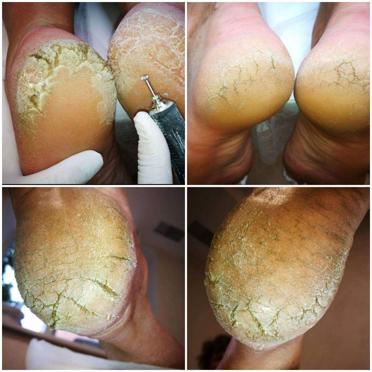 Услуга Гиперкератоз (лечение трещин и мозолей), фото до/после