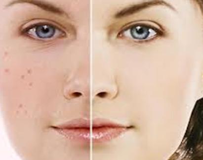 Услуга Лечение и диагностика кожных заболеваний, фото до/после